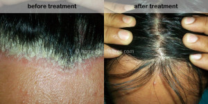 Homeopathic scalp treatment